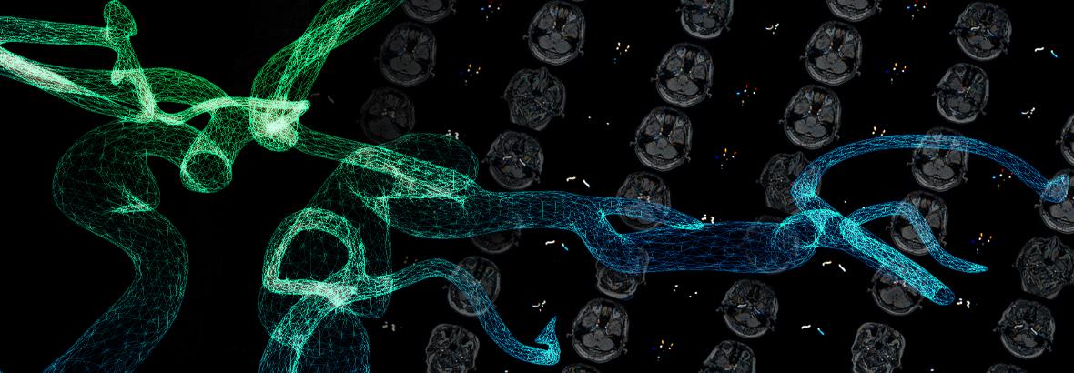 予測医療に向けた血流シミュレーションモデリング・可視化システムの開発